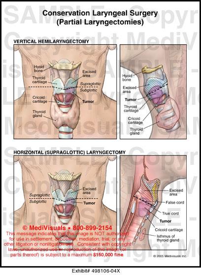 Subglottic area anatomy