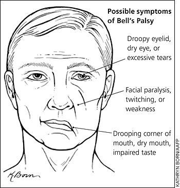 Acute facial palsy