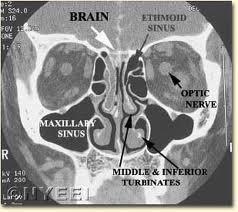nasal steroids acute sinusitis