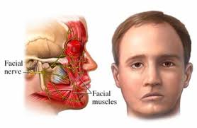 Paralysis Sudden facial