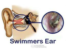 Swimmers Ear Pain Relief Home Remedy