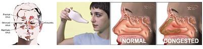grossan sinus rinse machine